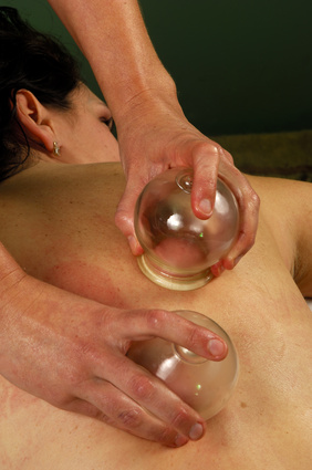 cupping massge